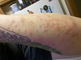 Tattoo Allergy in Marathi